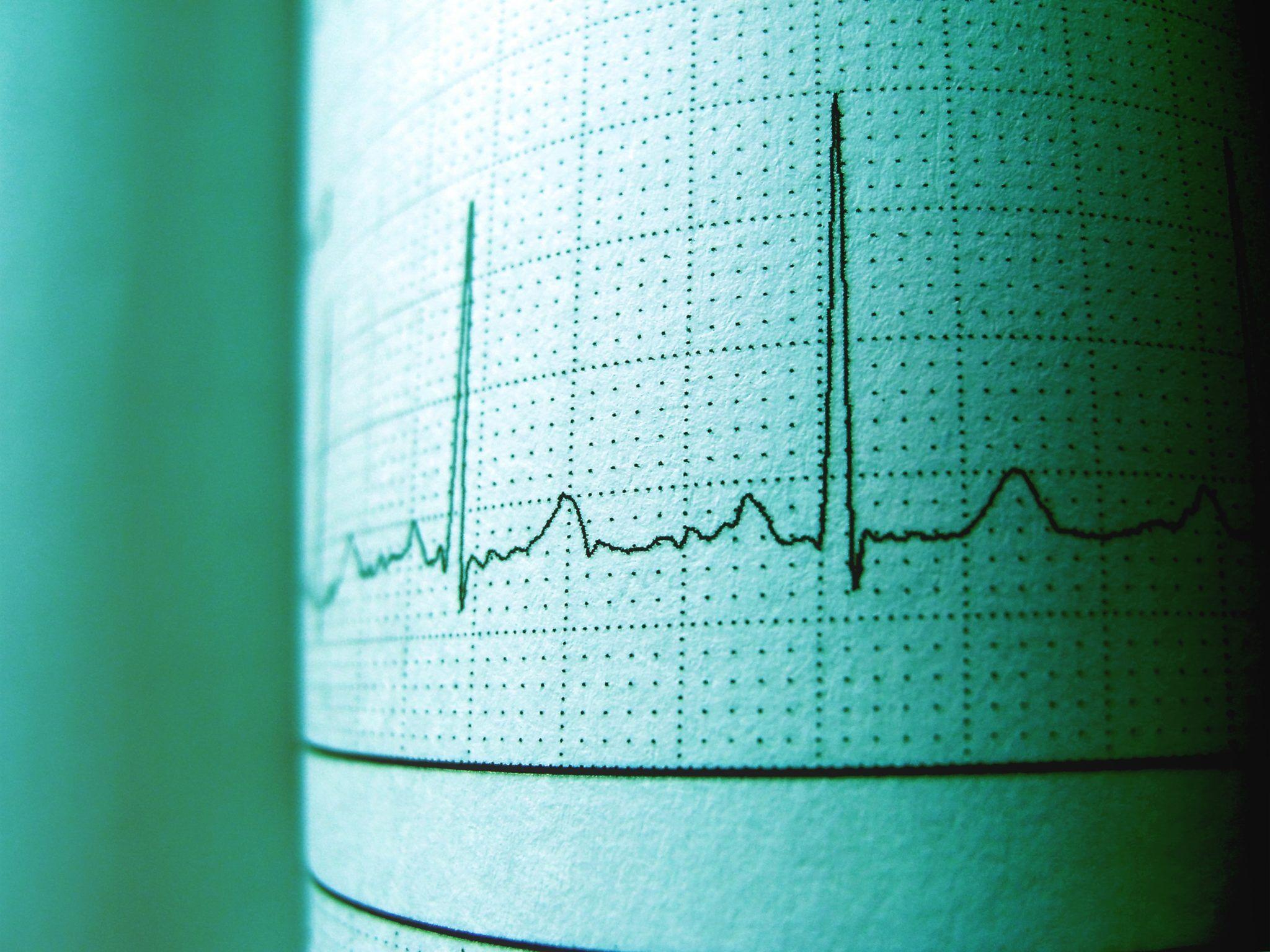 week van het hartritme